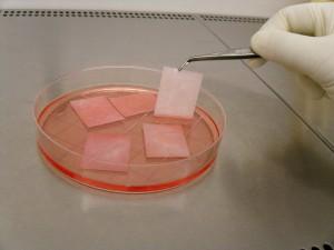 Rekonstruktion der Harnröhre durch Zellen der Mundschleimhaut