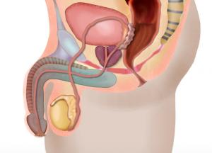 Wie entsteht die Vernarbung der Harnröhre bei der Urethrastenose?